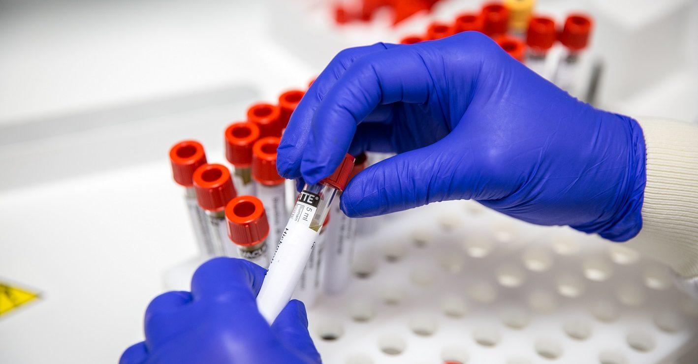 pathologist handling blood samples